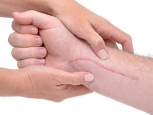 Коли знімають шви що робити. Як знімають шви після операції? як знімати хірургічні, операційні шви в домашніх умовах